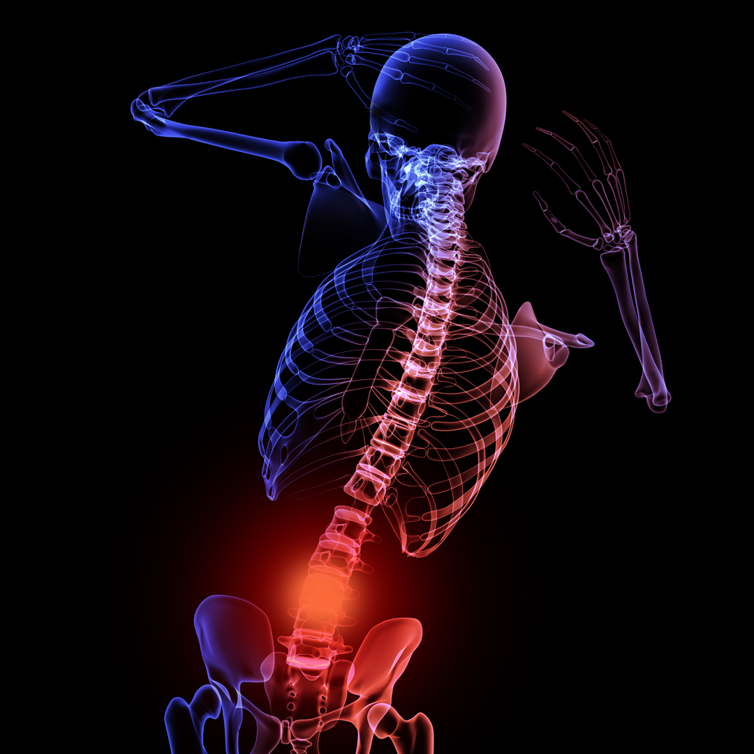 Pain, at a physiological level, is stimulation of sensitive nerve endings (nociceptive) either by chemical or mechanical means. This commonly occurs through injury and its purpose is to inform us of tissue damage. Spinal pain is one of society's most frequent complaints.